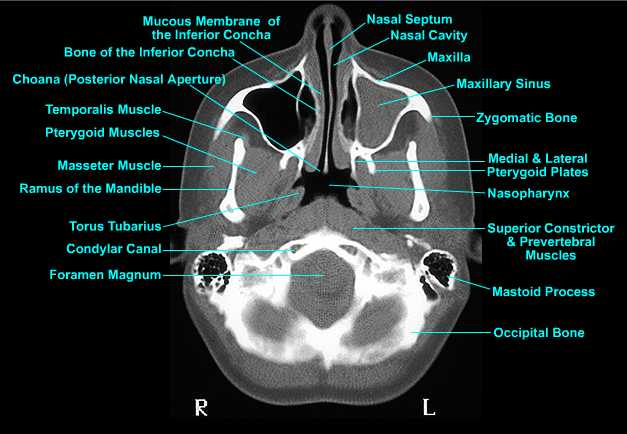 Skull anatomy ct
